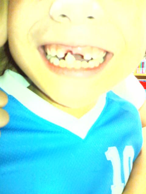 歯が抜けた